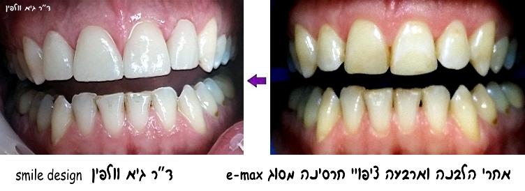 הלבנת שיניים zoom  וארבעה ציפויי חרסינה emax אסתטיקה דנטלית, גיא וולפין